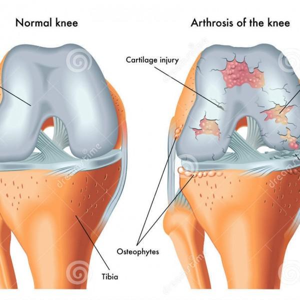 arthrosis-knee-medical-illustration-symptoms